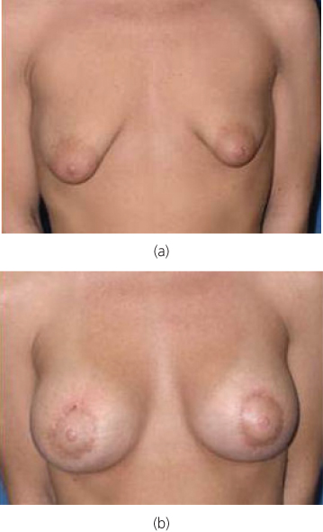 growth pre-menapausal breast