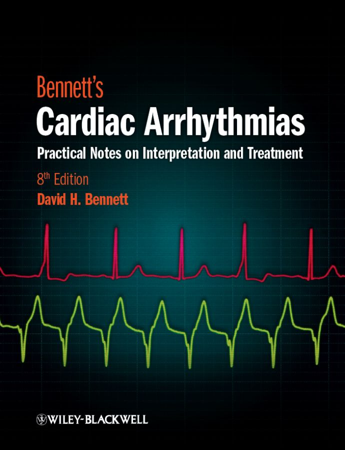 characteristics and effects of cardiac arrhythmia Effect of yoga on arrhythmia burden, anxiety, depression, and quality of life in paroxysmal atrial fibrillation.