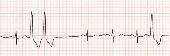 Ventricular Ectopic Beats Ectopic Beats Image