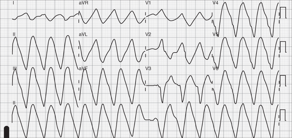 Electrocardiograhic Evaluation in the Setting of Non–Acute Coronary ...