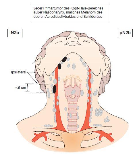 Niedlich Anatomie Lymphknoten Hals Bilder - Anatomie Von ...