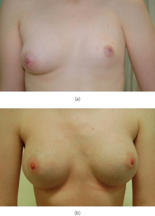 Butt female puberty breasts pictures