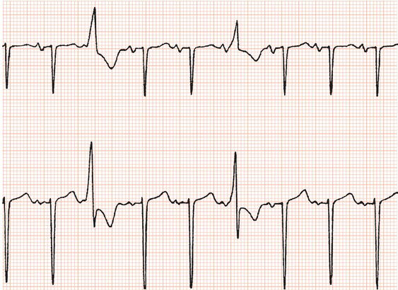Ventricular Ectopic Beats Tagged Keywords Ectopic Beats
